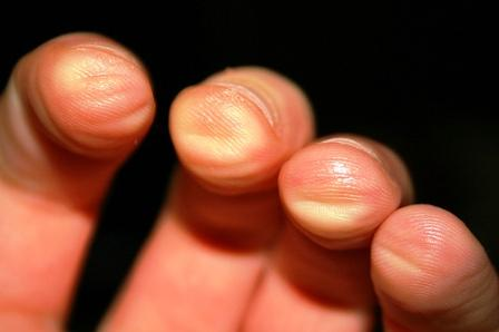 Sore Guitar Fingers